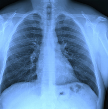What Happens When the Diaphragm Is Not Working? - Avery Biomedical ...